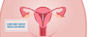 diu, mulher, contracepção